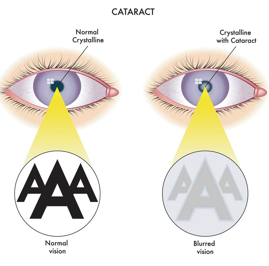 Illustration of normal eye and eye with cataract