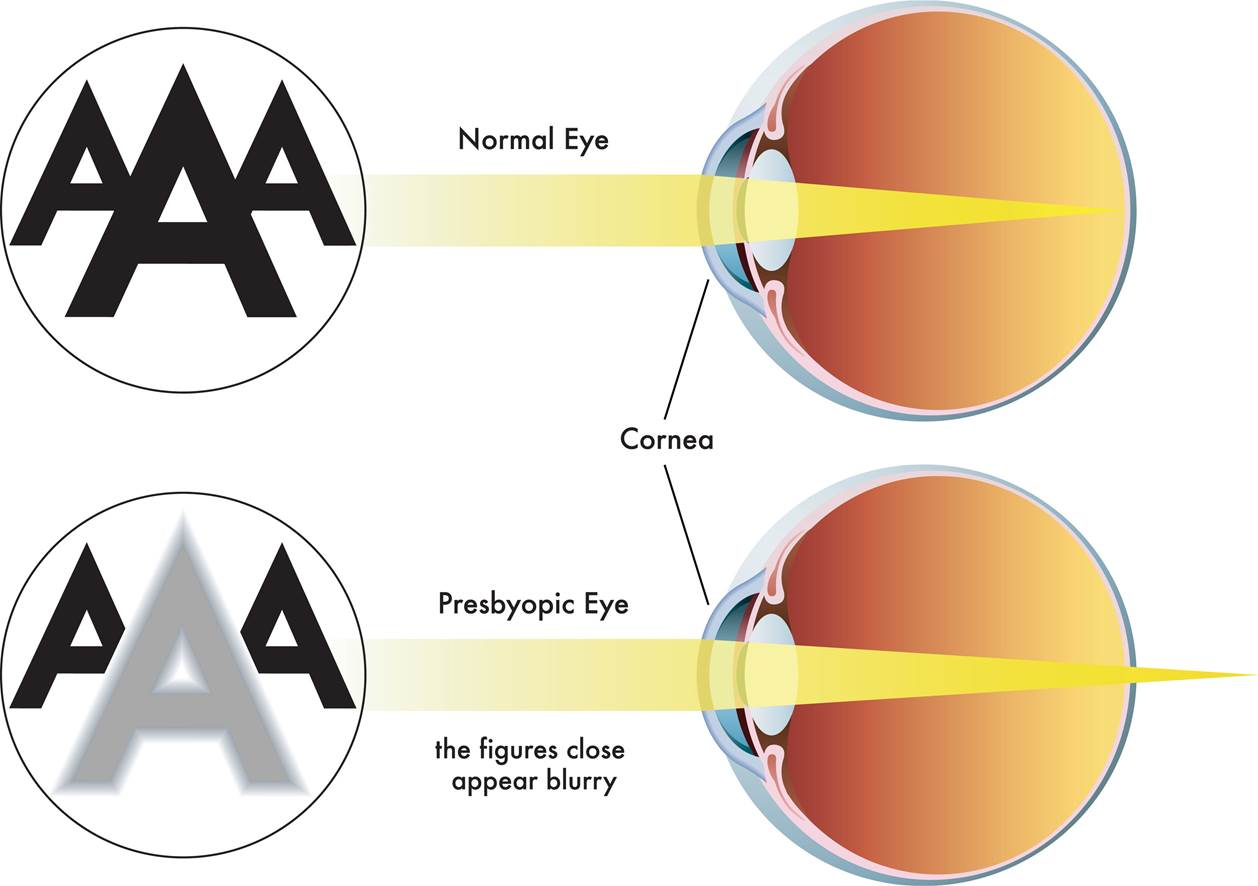 Illustration of how light rays focus in a normal eye and a presbyopic eye