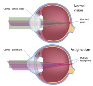 Normal versus Astigmatic Eye