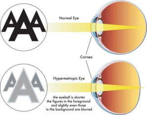 Normal versus Hyeropic Eye
