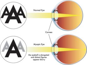 Normal versus Myopic Eye