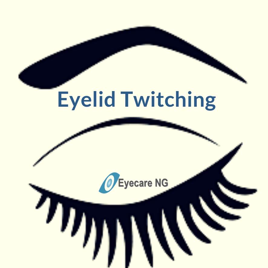 Causes and Relief of Eyelid Twitching